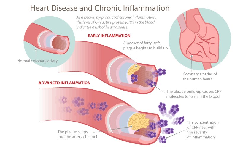 heart-disease-and-chronic-inflammation